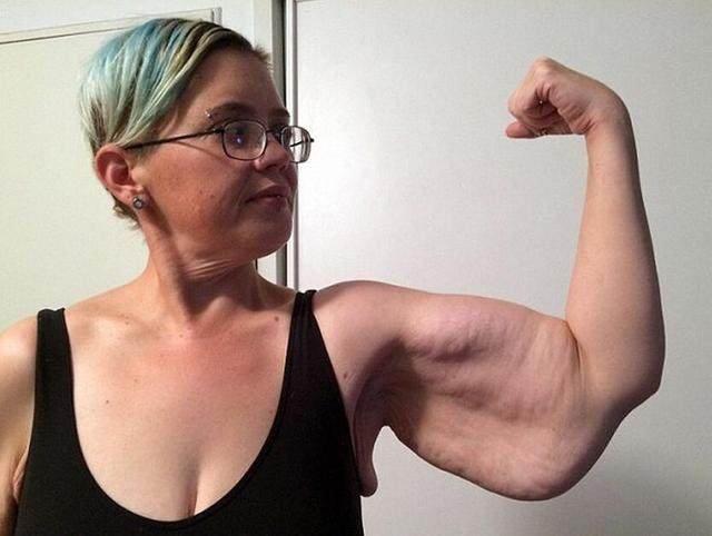 胖女子v女子两百多斤后,皮肤严重下垂使她a女子小乐减脂瘦身餐图片