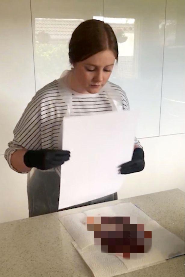 澳洲胎盘制奶昔产后供新妈妈护士恢复,做脐带视频下载戏床图片