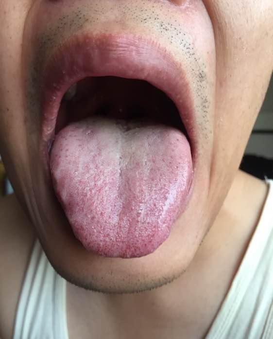 澳门银河网址:肝淤血淤、心肺火旺、脾肾阳虚的舌苔