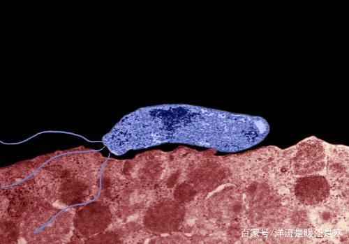 门螺杆菌用什么方案好,如何发挥出四联疗法的